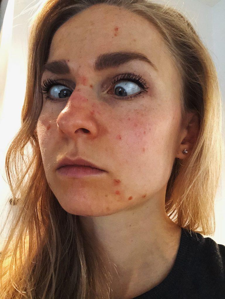 joy rosacea roaccutane isotretinoine huidstruggles skin trouble